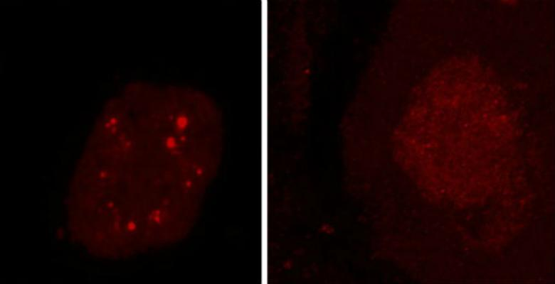 Researchers found clumps of non-functioning hnRNP H and at least three other RNA-binding proteins in the brain cells of people who had died with ALS, frontotemporal dementia or both. Bright red clumps of hnRNP H can be seen in the spinal cord motor neurons at left. Healthy neurons are shown at right. (Images: Aarti Sharma /Columbia University)